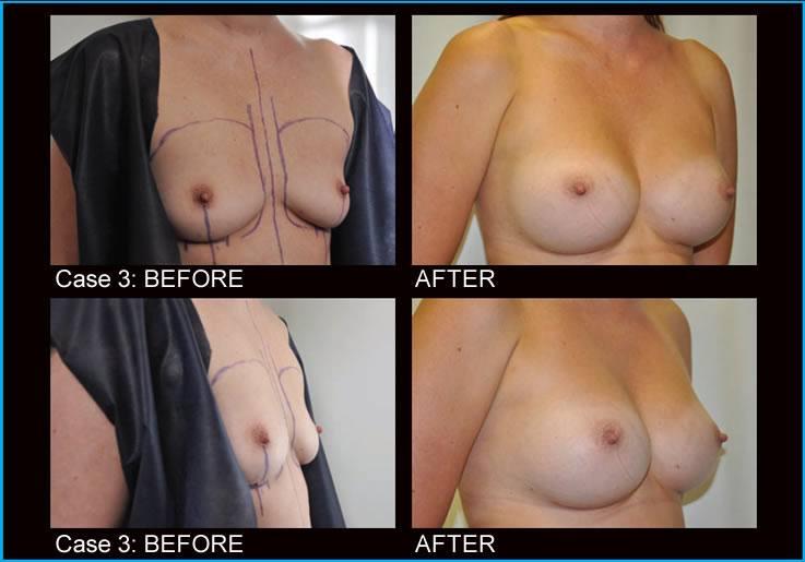 breast-augmentation-case3