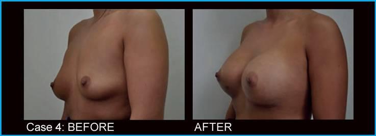 breast-augmentation-case4