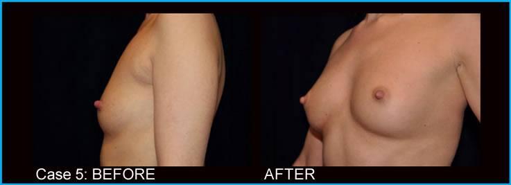 breast-augmentation-case5