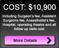 breast_augmentation_cost