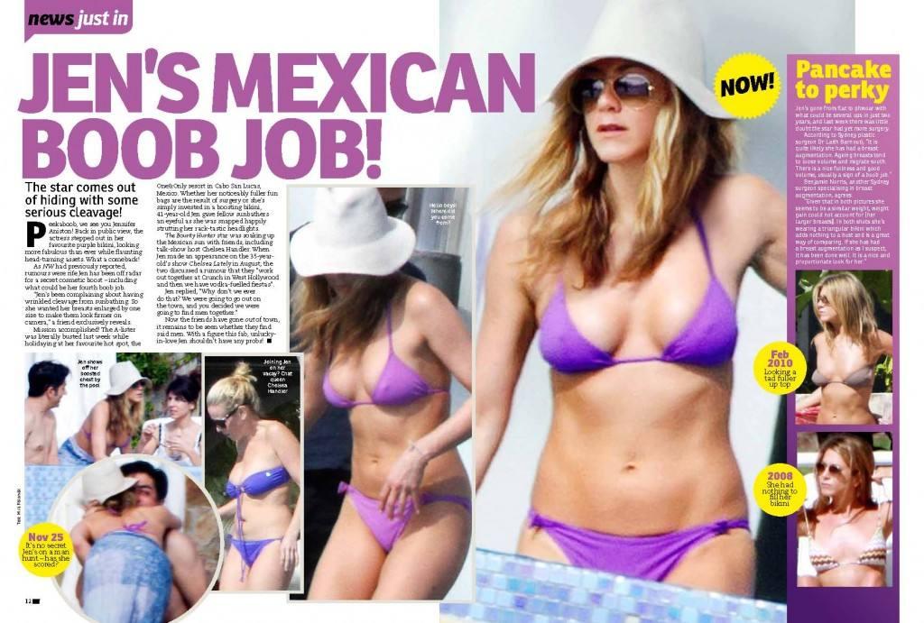 mexican-boob-job-1024x691