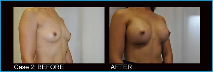 teardrop-implants-upper-pole-fullness
