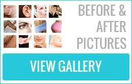 Before After Gallery